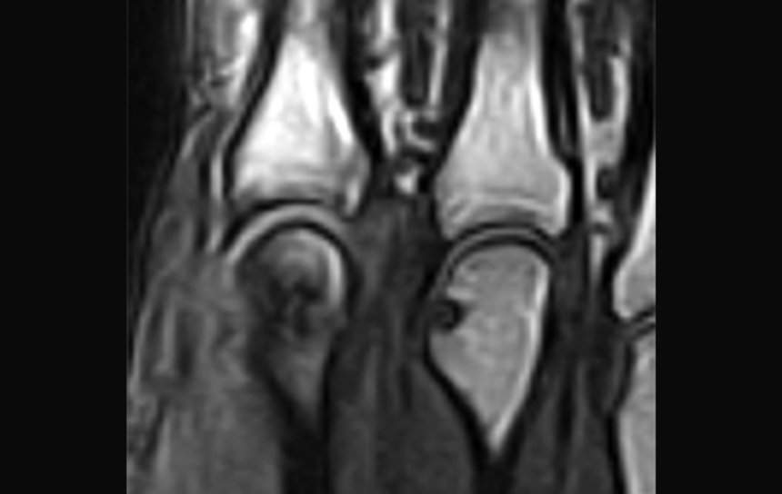mri of knee in New Jersey